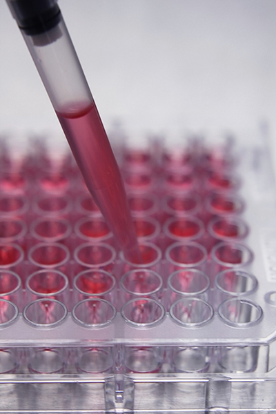 stem cells from bone marrow aspirate concentrate